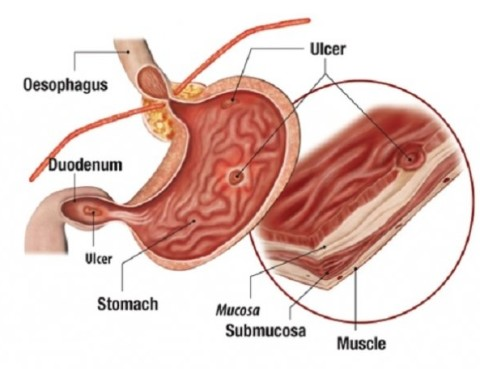 ulcer_gastric